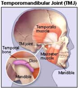 Tmj Surgery In Lowa Nebraska South Dakota Oral Surgery